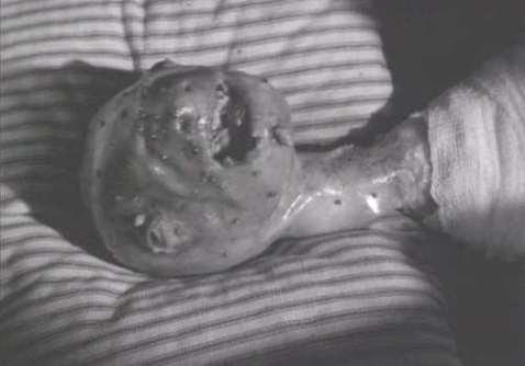 Eraserhead Alien Menonita Baby